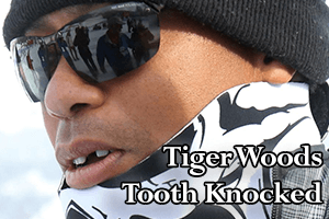 tiger woods tooth